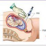 怀孕初期出血的症状