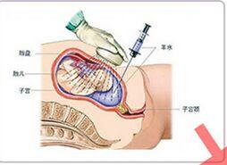 内地人能去香港鉴定胎儿性别吗