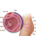 输卵管堵塞只能做试管婴儿手术助孕吗?
