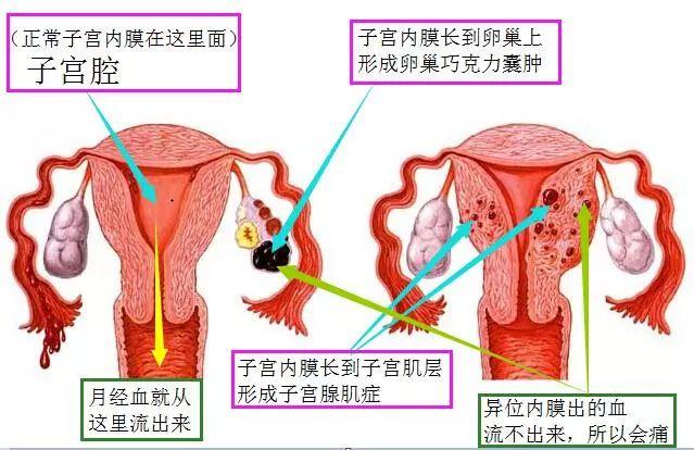 如何尽早发现子宫内膜异位症?有啥征兆?