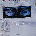 如何预约香港验血流程