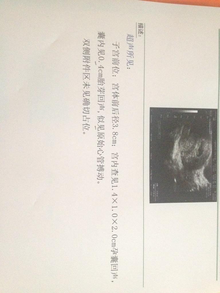 香港验血测胎儿性别费用去看男女攻略给大家!