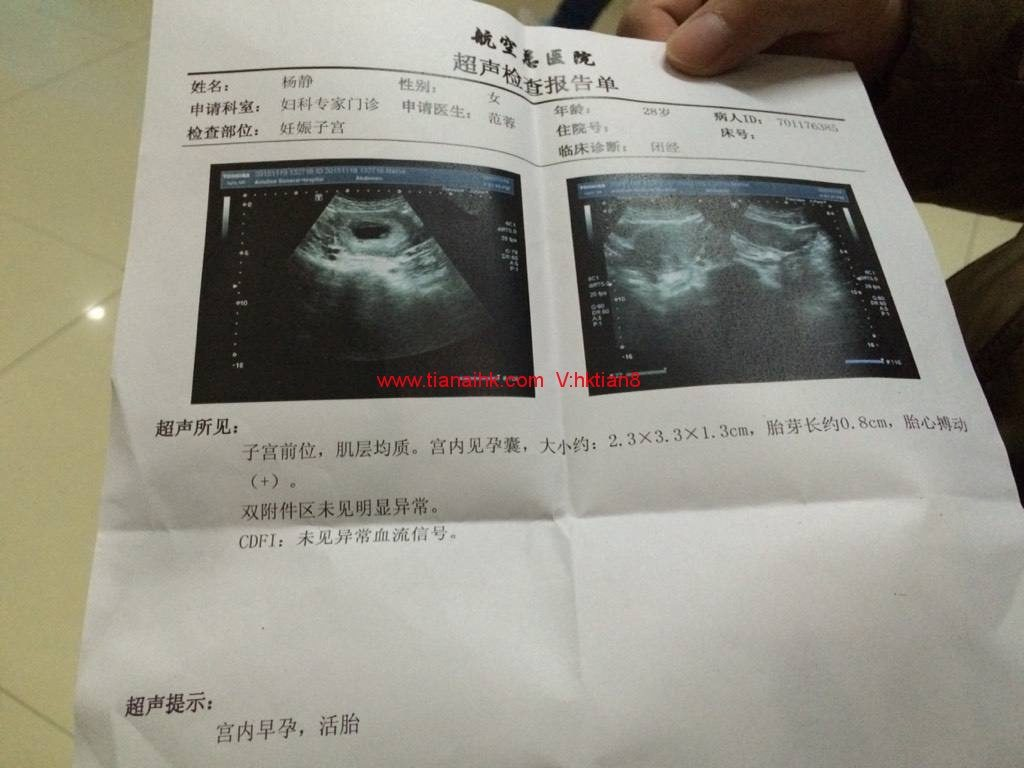 [深圳]香港验血查男女要不要吃东西?