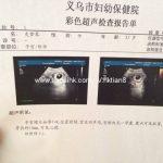 怀孕7周香港验血准吗?