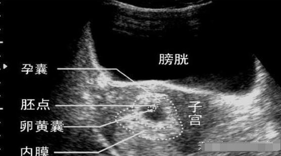 去香港验血查男女哪家准确率最高,你知道吗