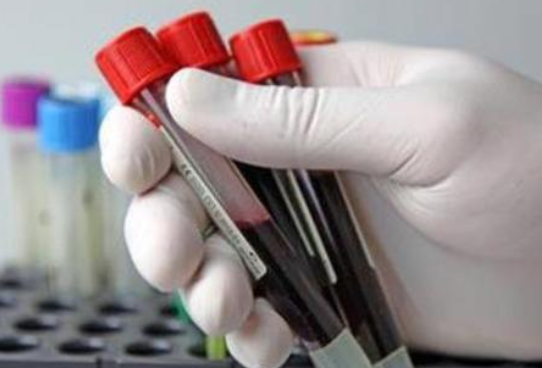 到香港测性别服务机构_快来围观验血最新风向标